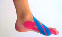 Medical Taping voor hallux